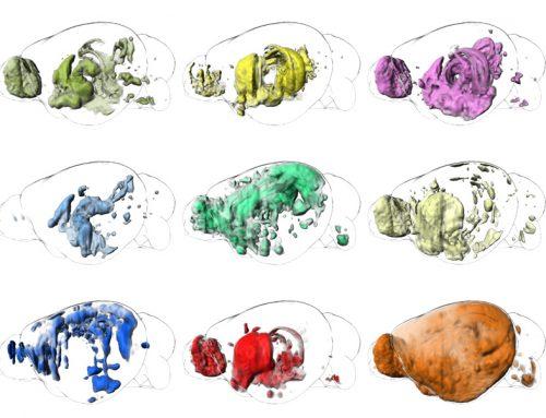 Architektur des Gehirns: Funktionale neuroanatomische Karten