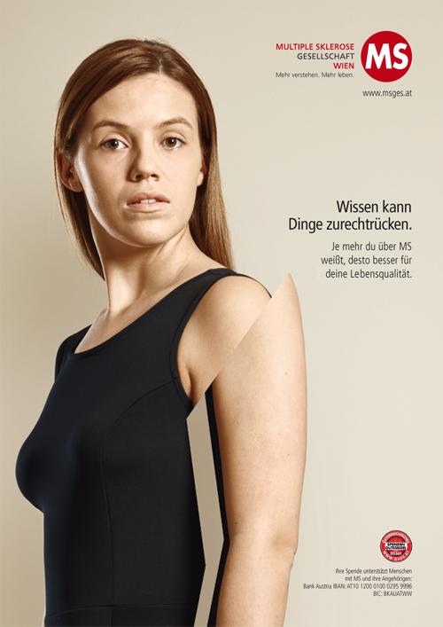 """Plakat mit junger Frau """"Wissen kannDinge zurechtrücken.Je mehr du über MSweißt, desto besser fürdeine Lebensqualität."""""""