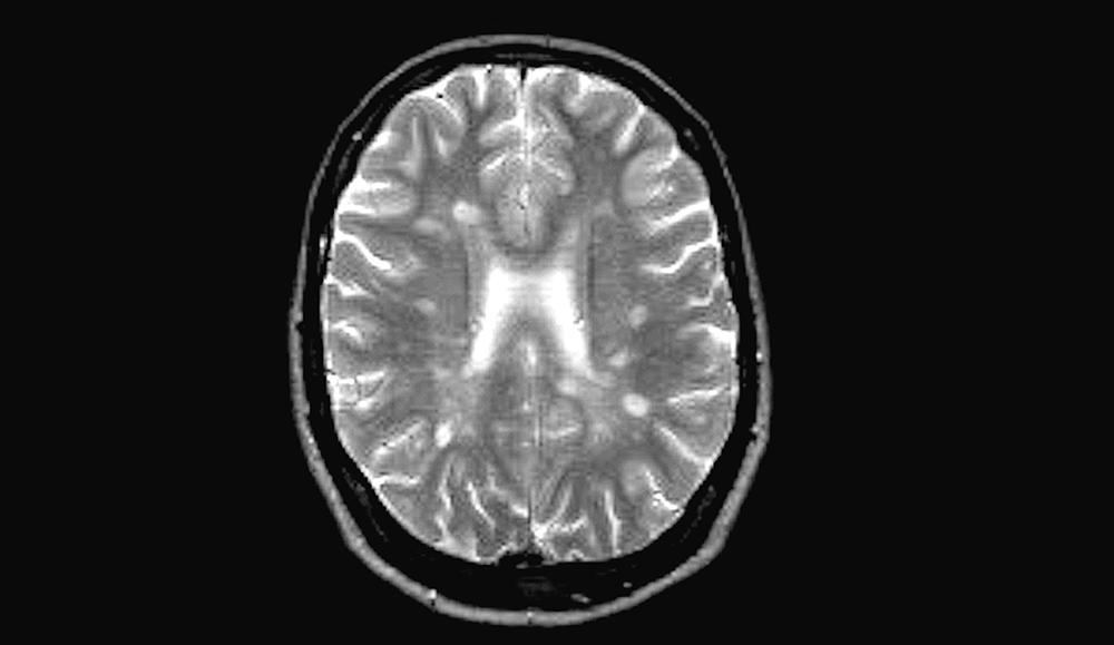 Multiple Sklerose: Gehirn mit typischen MS-Plaques Autor: DGN/Dr. Carsten Lukas, Bochum