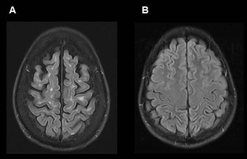 MRT-Aufnahmen des Gehirns eines MS-Patienten (A) und einer Kontrollperson (B), zur Veranschaulichung, wie sich die Erkrankung im Gehirn manifestiert: In (A) sichtbar die für die MS typischen weißen Läsionen nahe der Großhirnrinde sowie der Schwund (Atrophie) des Gehirns. Foto: Achim Gass (UMM)